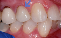 Cerec example 5(2)